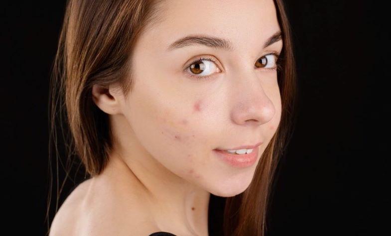 acne da allergia alla mascherina