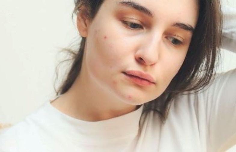 allergia da mascherina su mento e guance